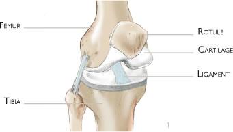 ostéotomie de valgisation du genoux